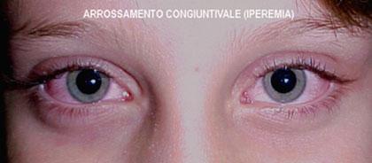 11_13-iperemia