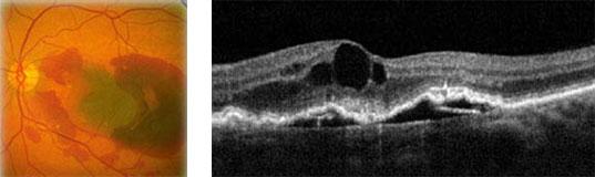 A sinistra: maculopatia essudativa. A destra: DNE + EMC + CNV
