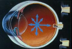 17_02-glaucoma