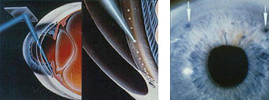 A sinistra: Alt. A destra: Iridotomia